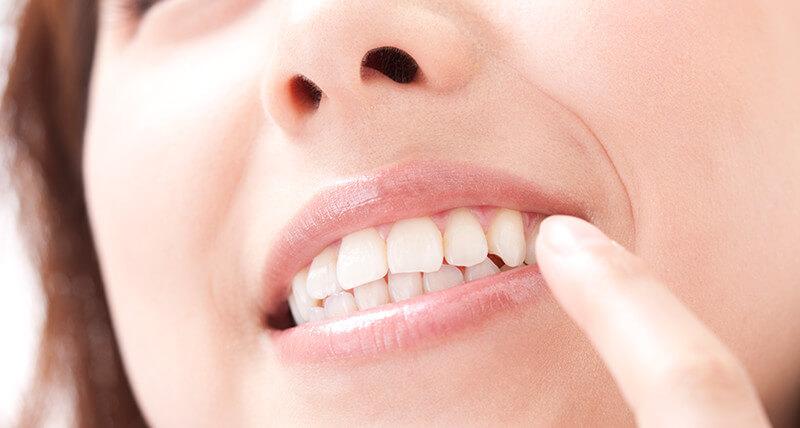 白い歯にしたい